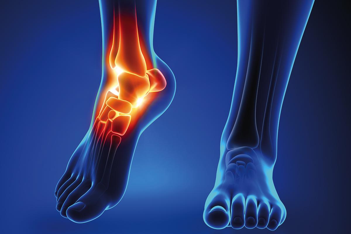 Spitzfuß und Fußheberschwäche: Ursachen, Symptome, Diagnose, Behandlung