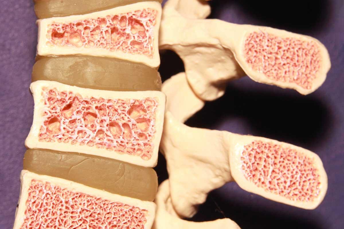 L'osteoporosi, che cos'è?