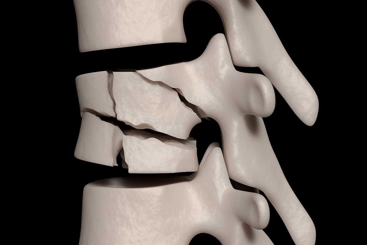 Le fratture del corpo vertebrale