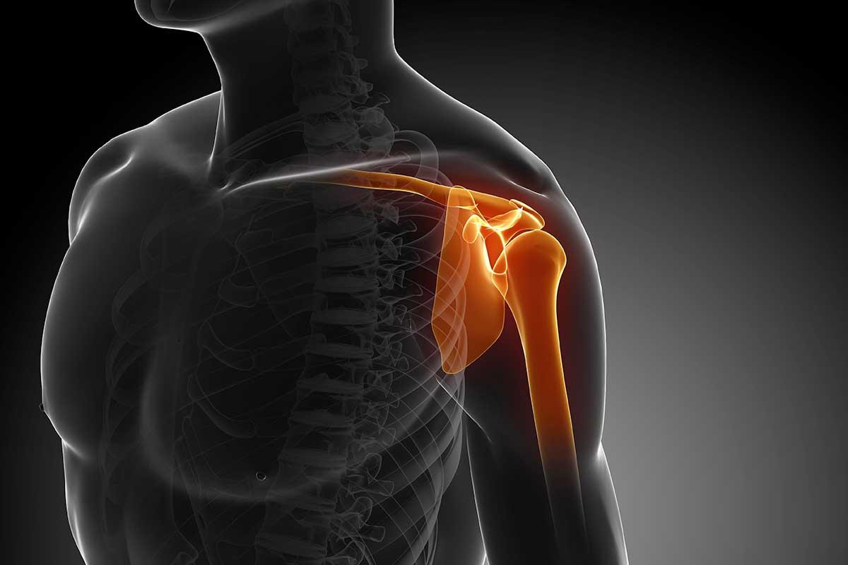 La lussazione della spalla