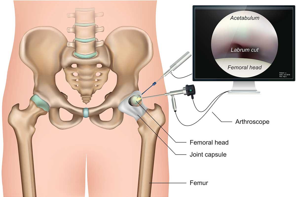 Hüftarthroskopie und wann sie indiziert ist